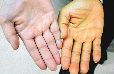 Гепатит вНиколаеве: в клиниках оказались 77 человек