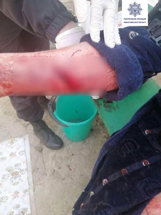 В Николаеве мужчина пытался покончить с собой, перерезав вены: спасли патрульные
