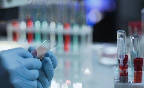 На Николаевщине за сутки выявлено 8 новых случаев заражения коронавирусом