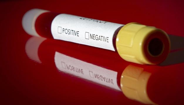 В Николаевской области подтвердили 3 новых случая заражения коронавирусом