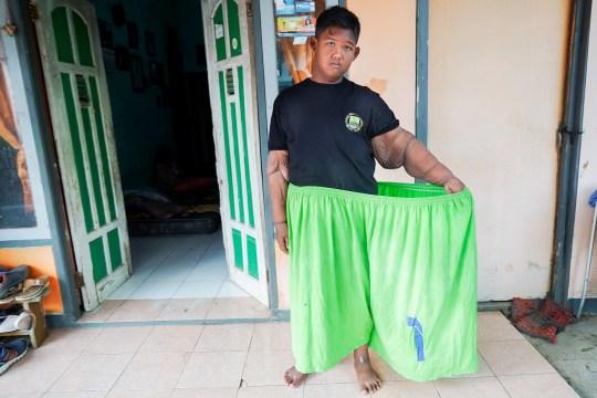 Самый толстый мальчик в мире весил больше 190 кг в 10 лет. За 3 года он смог похудеть больше чем в 2 раза. ФОТО